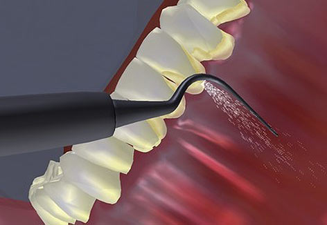 Multimedia Gallery. Dental Implants Costa Rica