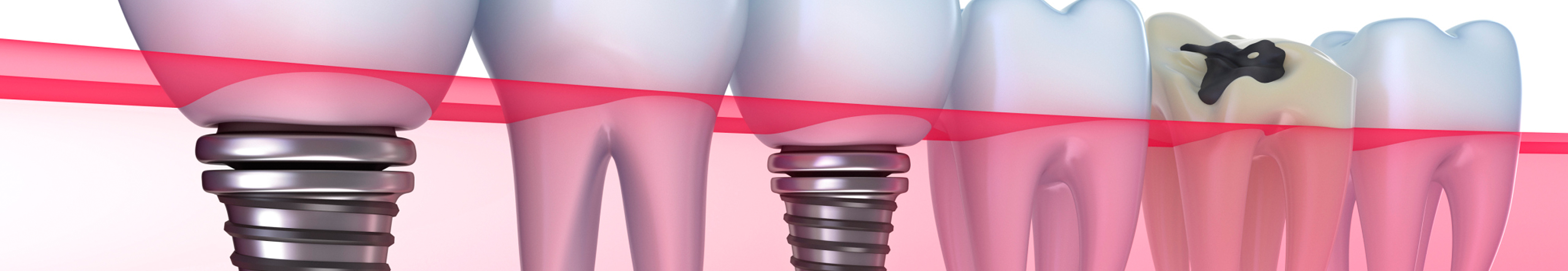 Dental Implants Treatments in Costa Rica