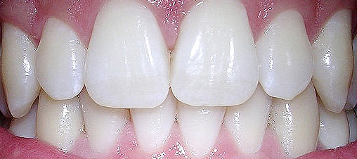 Growing a Tooth