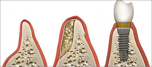Bone Grafting and Dental Implants