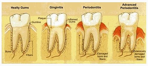 Periodontitis: A Progressive Form of Gum Disease