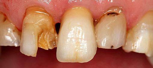 burden-oral-conditions