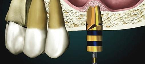 bone graft in dental implants