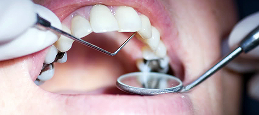 Uncontrolled Diabetes Spells Doom for Dental Implants