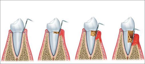 periodontitis-causing-gene