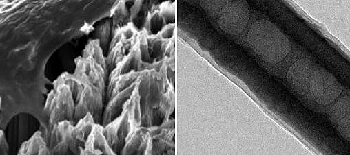 New nanotechnology may help provide longer-lasting dental implants