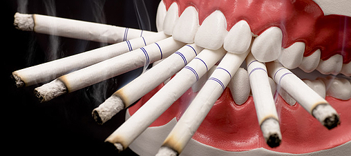 Smoking and Oral Health: Dental Problems