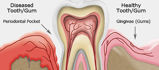 The cause of gum disease related to type 2 diabetes