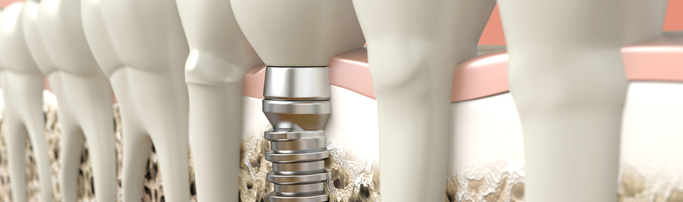 New Material may Upgrade Dental Implants