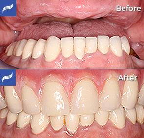 Fix-Hybrid-Dentures-and-Overdentures-01