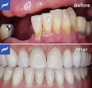 Fix-Hybrid-Dentures-and-Overdentures-03