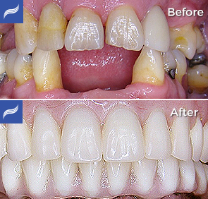 Full Mouth Restoration with Dental Implants