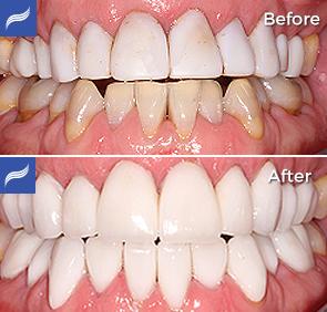 restoration-porcelain-zirconium-crowns-02