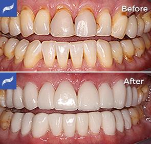 restoration-porcelain-zirconium-crowns-03
