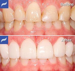 restoration-porcelain-zirconium-crowns-04