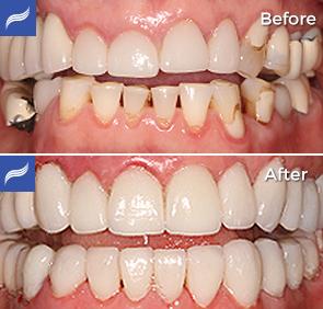 restoration-porcelain-zirconium-crowns-05