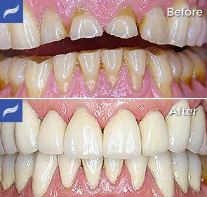 restoration-porcelain-zirconium-crowns-06