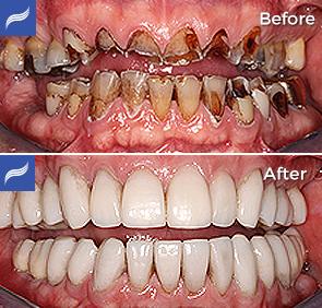 restoration-porcelain-zirconium-crowns-07