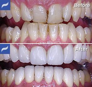 restoration-porcelain-zirconium-crowns-08