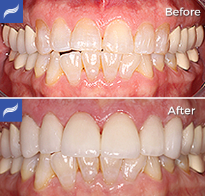 restoration-porcelain-zirconium-crowns-09