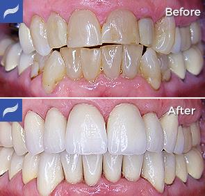 restoration-porcelain-zirconium-crowns-10