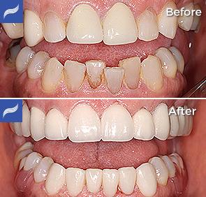 restoration-porcelain-zirconium-crowns-11