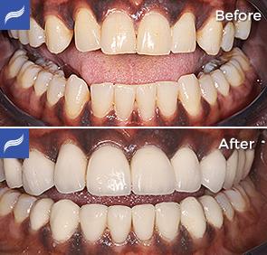 restoration-porcelain-zirconium-crowns-12