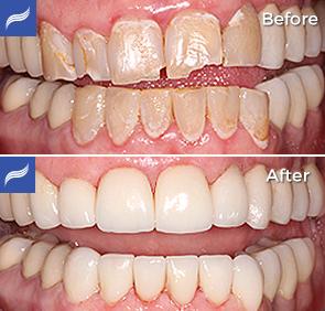 restoration-porcelain-zirconium-crowns-13